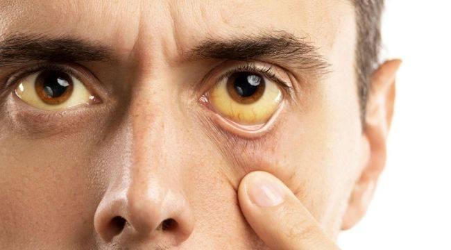 Hepatit'ten Korunmanın Yolu Aşılanmak