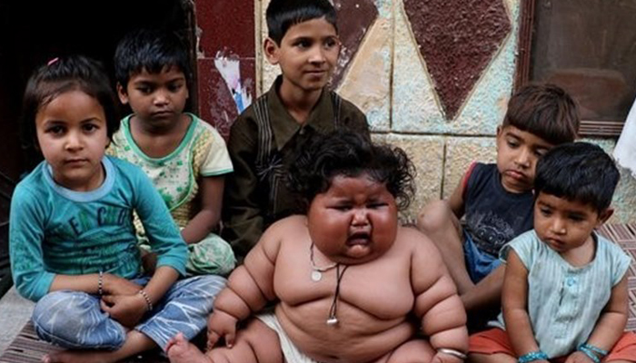 8 Aylık Bebek 17 Kilo